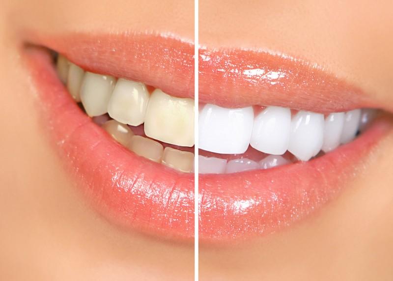 Teeth Whitening Nutley, NJ